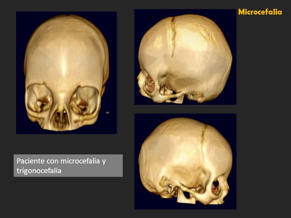Microcefalia Paciente con microcefalia y trígonocefalia