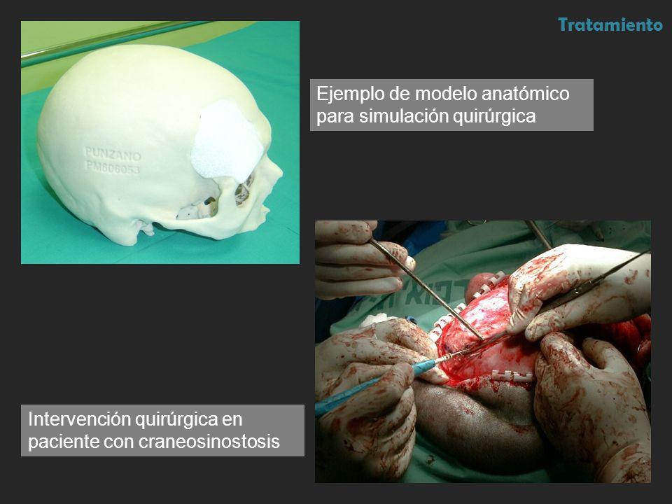 TratamientoEjemplo de modelo anatómico para simulación quirúrgica.