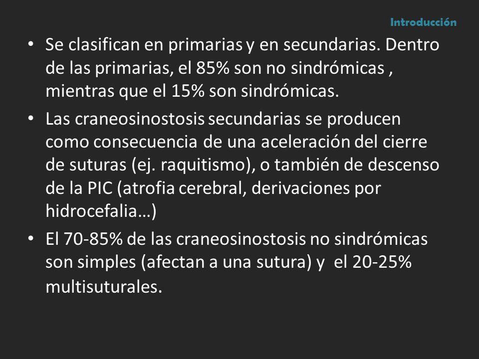 Introducción Se clasifican en primarias y en secundarias. Dentro de las primarias, el 85% son no sindrómicas , mientras que el 15% son sindrómicas.
