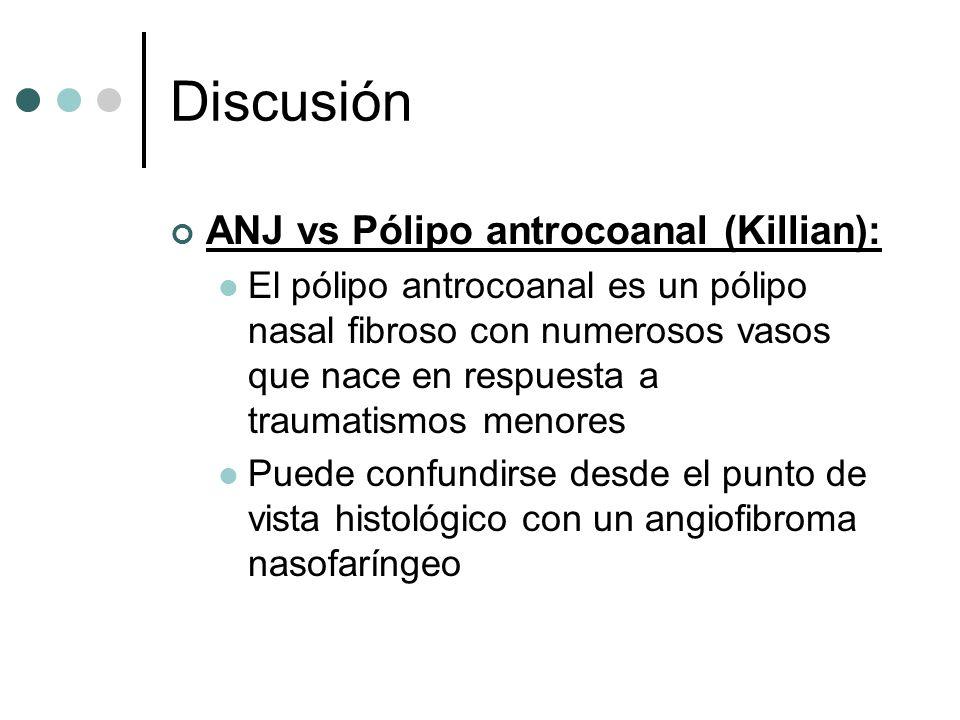 Discusión ANJ vs Pólipo antrocoanal (Killian):