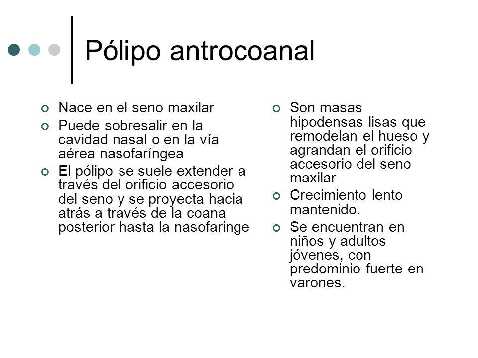 Pólipo antrocoanal Nace en el seno maxilar