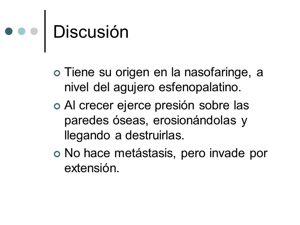 DiscusiónTiene su origen en la nasofaringe, a nivel del agujero esfenopalatino.