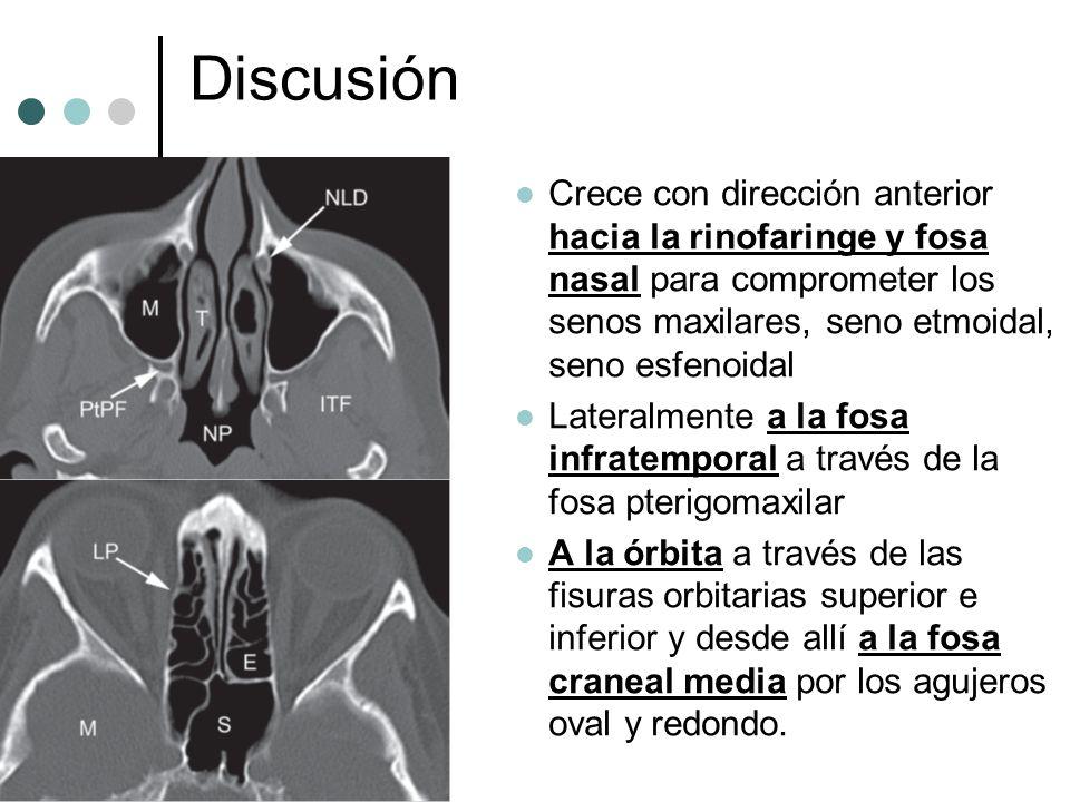 Discusión Crece con dirección anterior hacia la rinofaringe y fosa nasal para comprometer los senos maxilares, seno etmoidal, seno esfenoidal.