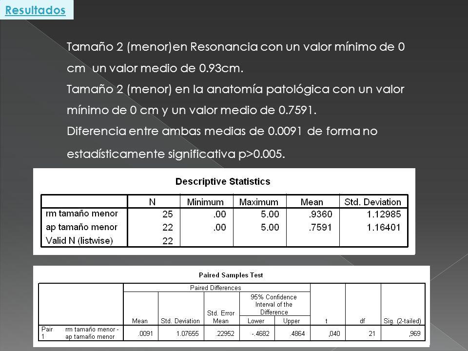 Resultados Tamaño 2 (menor)en Resonancia con un valor mínimo de 0 cm un valor medio de 0.93cm.