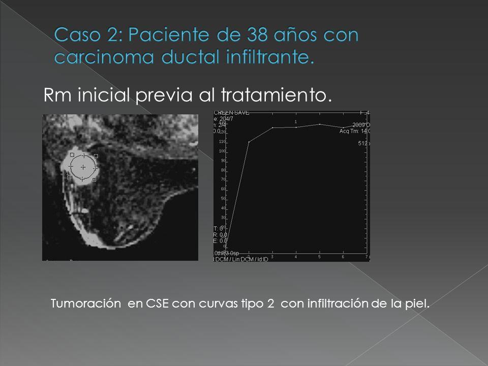 Caso 2: Paciente de 38 años con carcinoma ductal infiltrante.