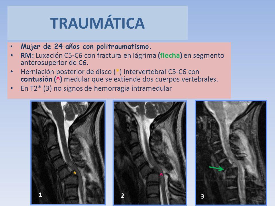 TRAUMÁTICA Mujer de 24 años con politraumatismo. RM: Luxación C5-C6 con fractura en lágrima (flecha) en segmento anterosuperior de C6.