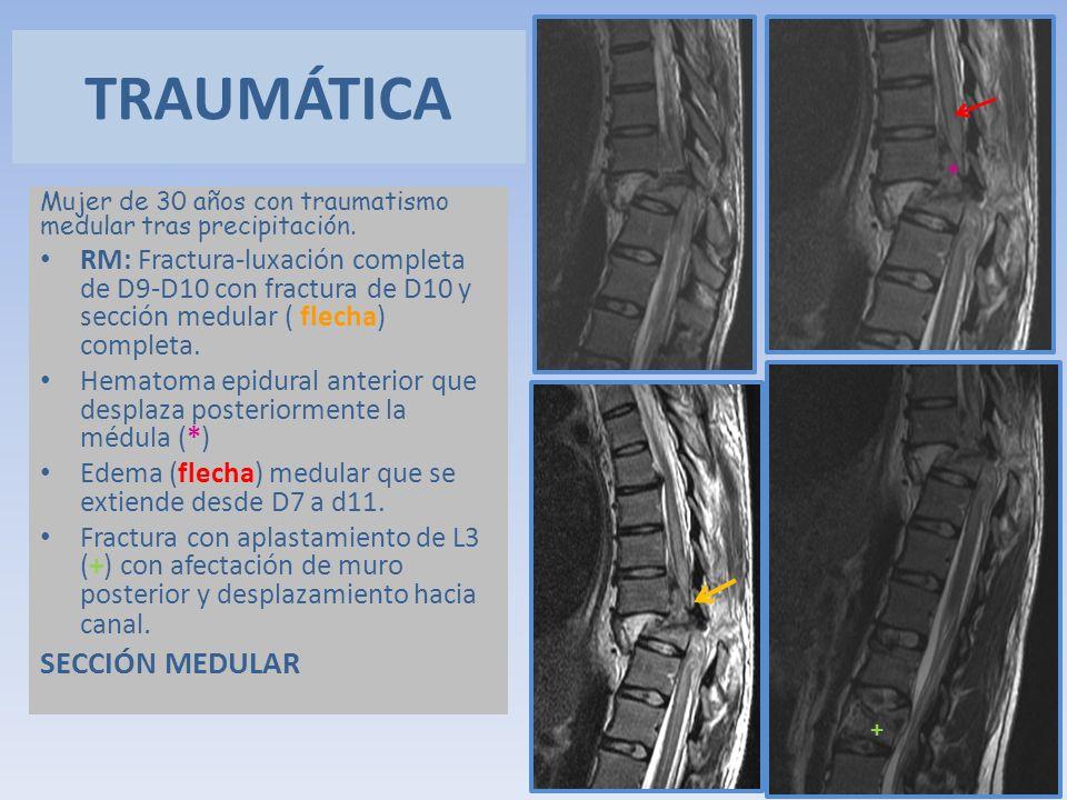 TRAUMÁTICA SECCIÓN MEDULAR