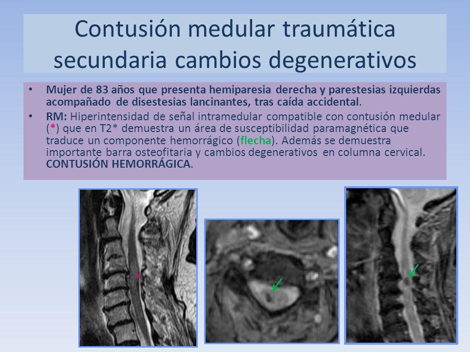 Contusión medular traumática secundaria cambios degenerativos
