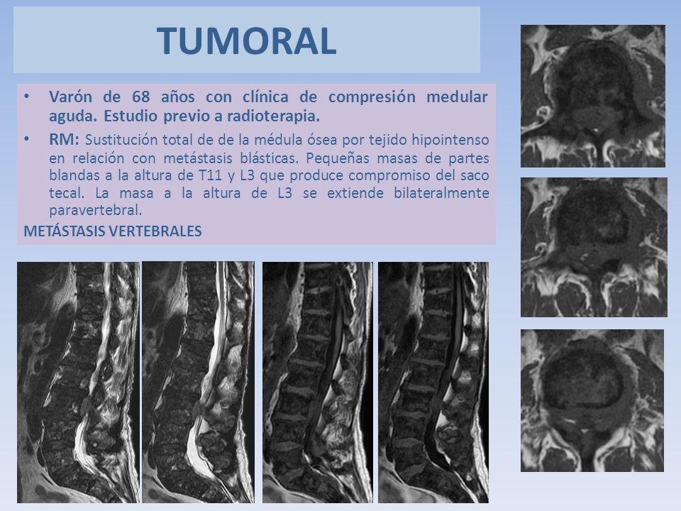 TUMORAL Varón de 68 años con clínica de compresión medular aguda. Estudio previo a radioterapia.