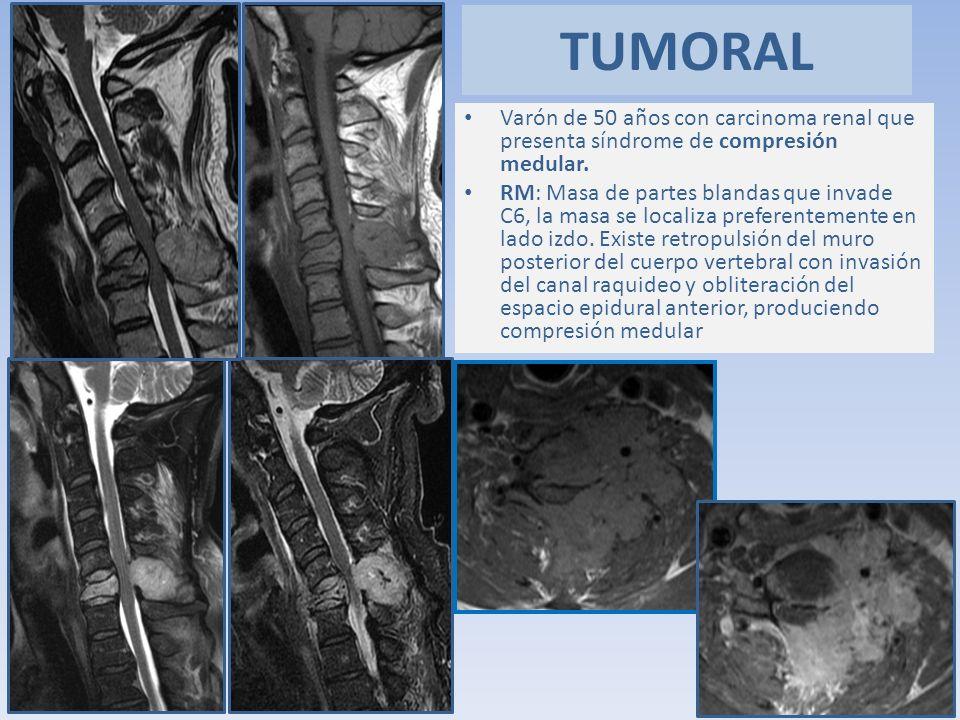 TUMORAL Varón de 50 años con carcinoma renal que presenta síndrome de compresión medular.