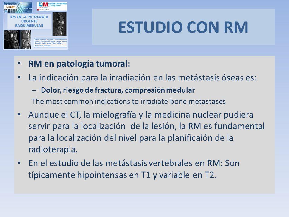 ESTUDIO CON RM RM en patología tumoral: