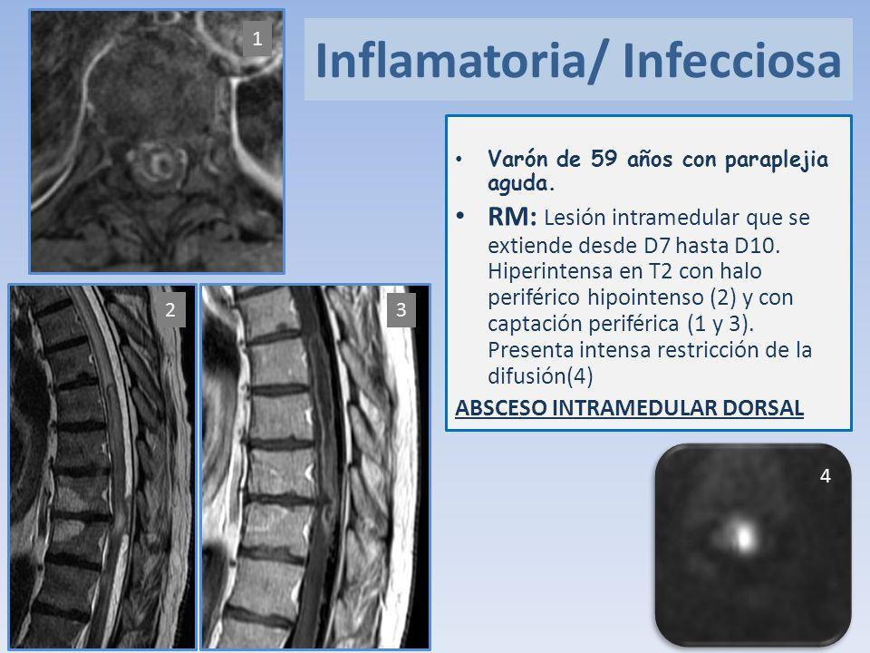 Inflamatoria/ Infecciosa