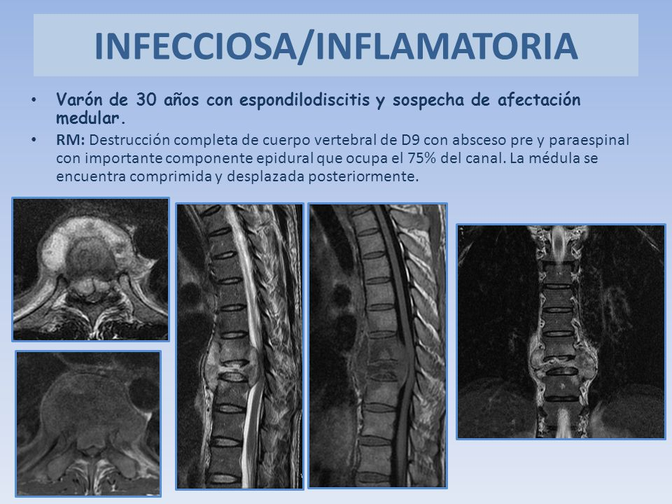 INFECCIOSA/INFLAMATORIA