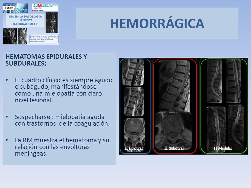 HEMORRÁGICA HEMATOMAS EPIDURALES Y SUBDURALES: