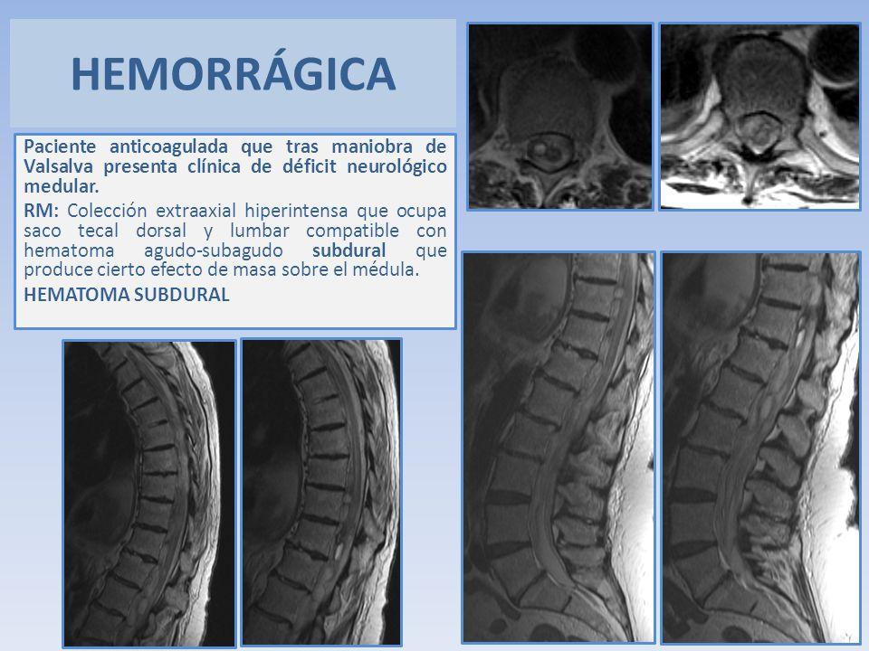 HEMORRÁGICA Paciente anticoagulada que tras maniobra de Valsalva presenta clínica de déficit neurológico medular.