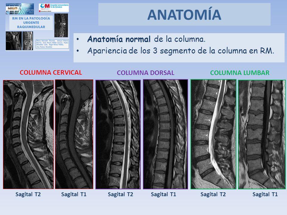 ANATOMÍA Anatomía normal de la columna.