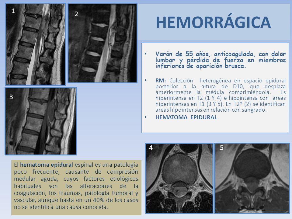 HEMORRÁGICA 1 2 3 4 5 HEMATOMA EPIDURAL