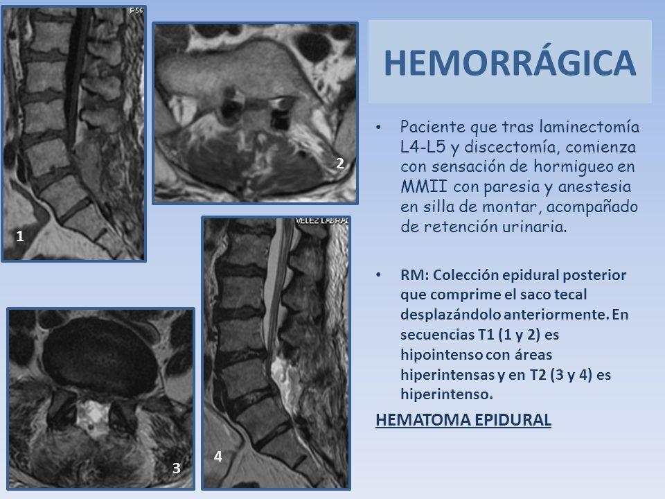 HEMORRÁGICA HEMATOMA EPIDURAL