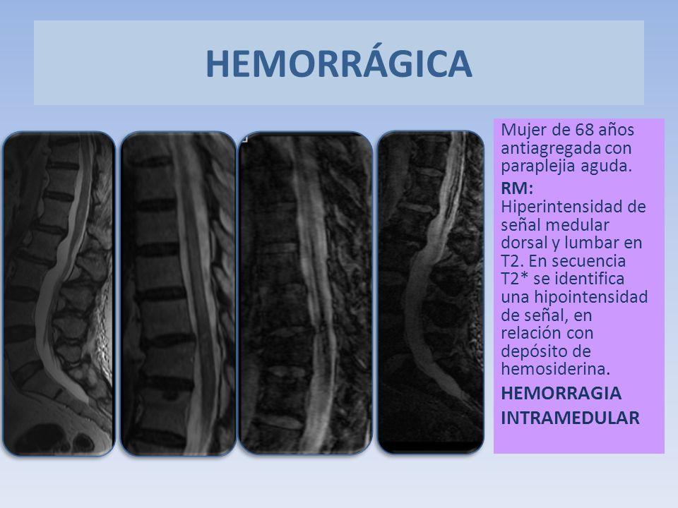 HEMORRÁGICA HEMORRAGIA INTRAMEDULAR