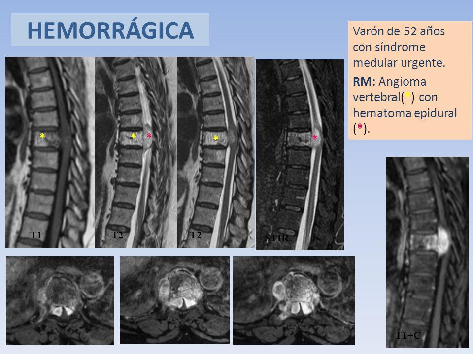 HEMORRÁGICA Varón de 52 años con síndrome medular urgente. RM: Angioma vertebral(*) con hematoma epidural (*).