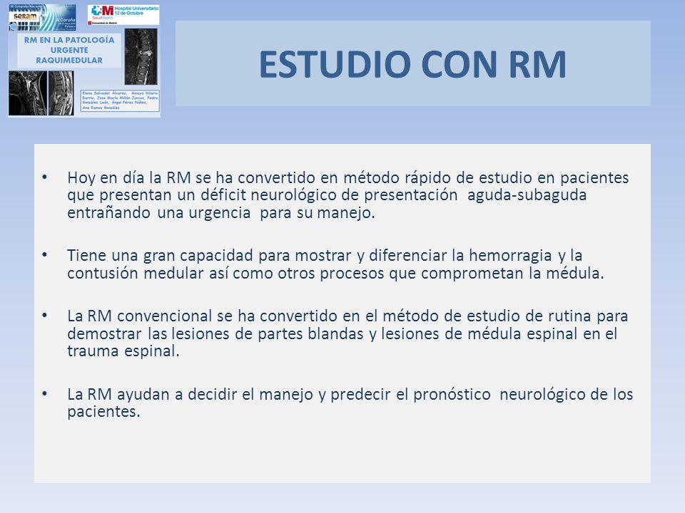 ESTUDIO CON RM