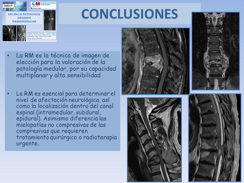 CONCLUSIONES La RM es la técnica de imagen de elección para la valoración de la patología medular, por su capacidad multiplanar y alta sensibilidad.