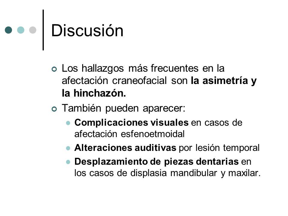 DiscusiónLos hallazgos más frecuentes en la afectación craneofacial son la asimetría y la hinchazón.