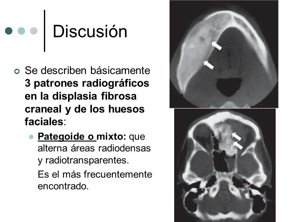 Discusión Se describen básicamente 3 patrones radiográficos en la displasia fibrosa craneal y de los huesos faciales: