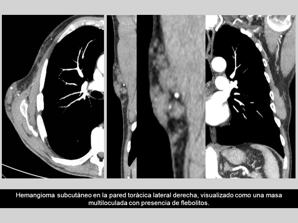 Hemangioma subcutáneo en la pared torácica lateral derecha, visualizado como una masa multiloculada con presencia de flebolitos.