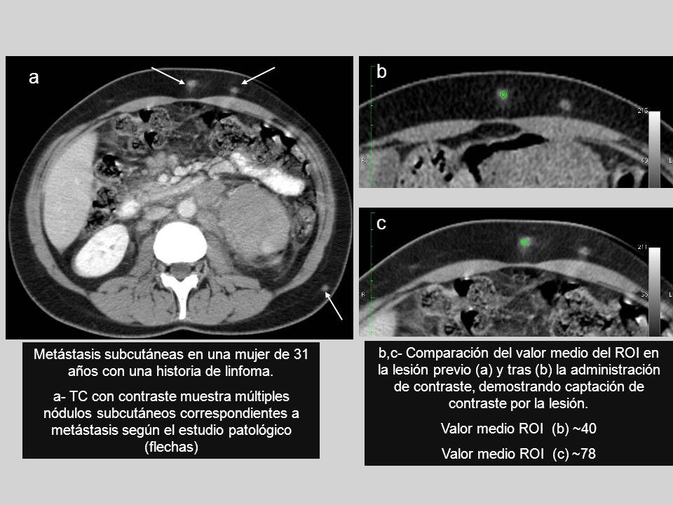 a b. c. Metástasis subcutáneas en una mujer de 31 años con una historia de linfoma.