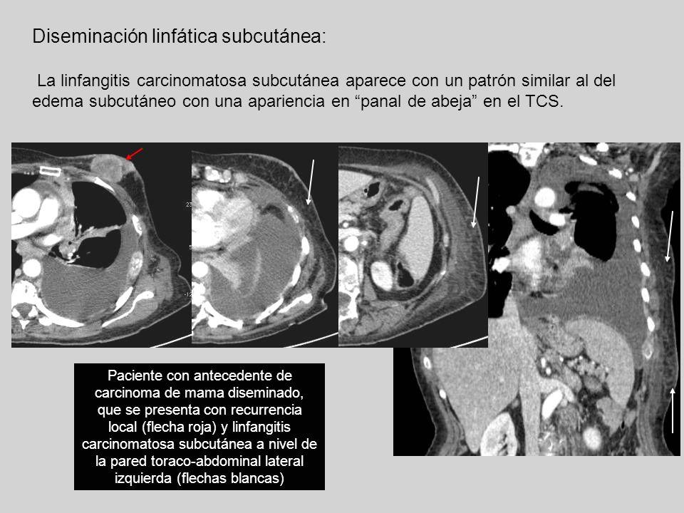 Diseminación linfática subcutánea: