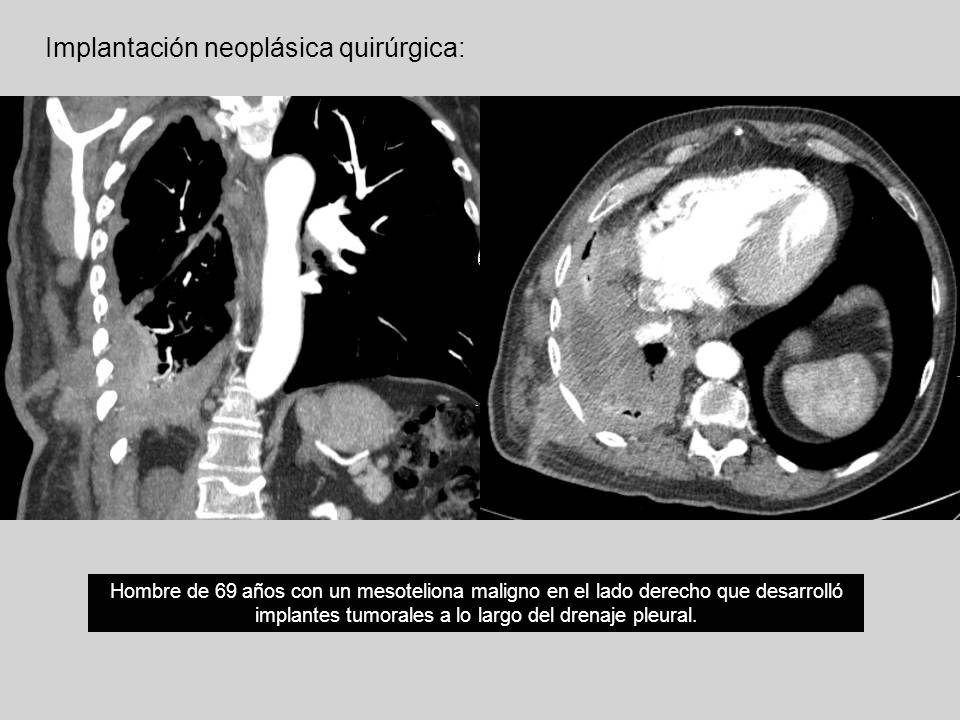 Implantación neoplásica quirúrgica: