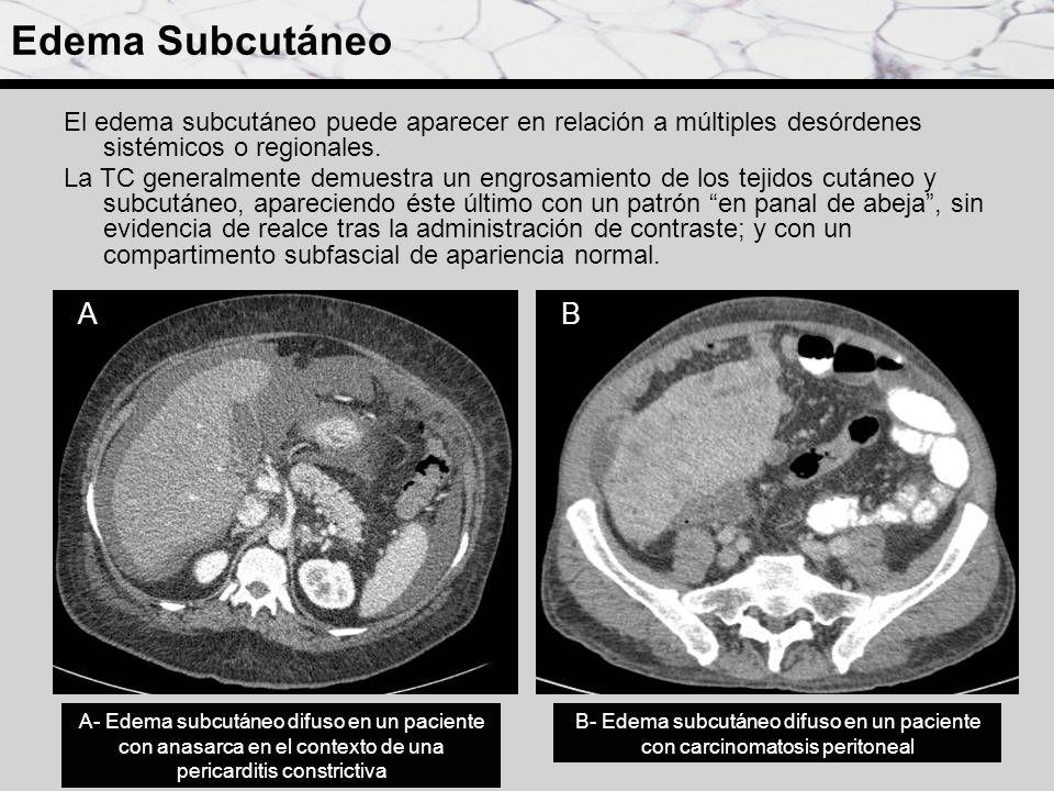 Edema Subcutáneo El edema subcutáneo puede aparecer en relación a múltiples desórdenes sistémicos o regionales.