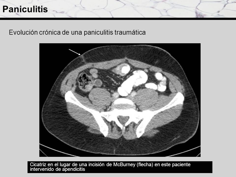 Paniculitis Evolución crónica de una paniculitis traumática