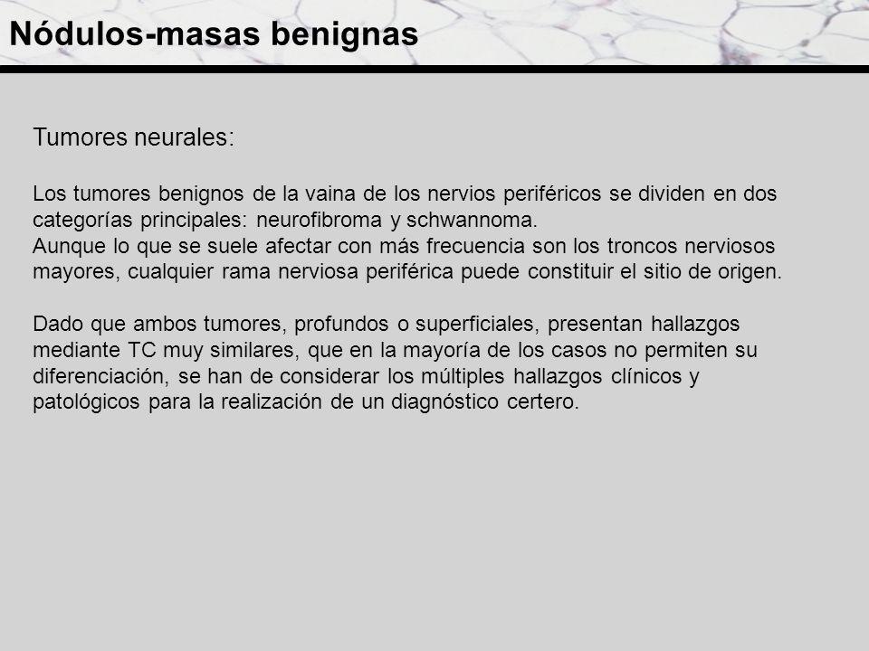 Nódulos-masas benignas