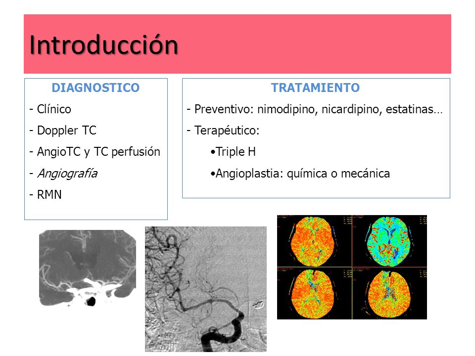 Introducción DIAGNOSTICO Clínico Doppler TC AngioTC y TC perfusión
