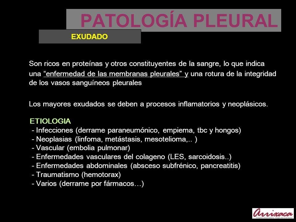 PATOLOGÍA PLEURALEXUDADO.