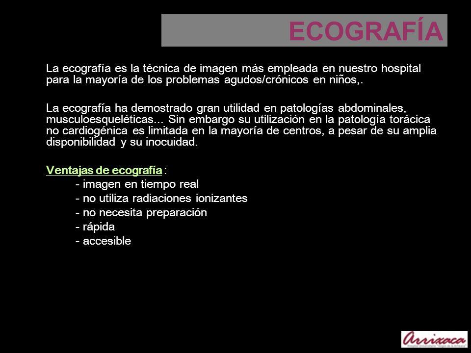 ECOGRAFÍALa ecografía es la técnica de imagen más empleada en nuestro hospital para la mayoría de los problemas agudos/crónicos en niños,.