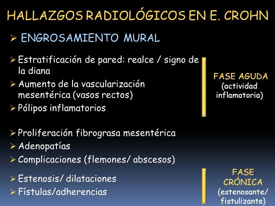 HALLAZGOS RADIOLÓGICOS EN E. CROHN