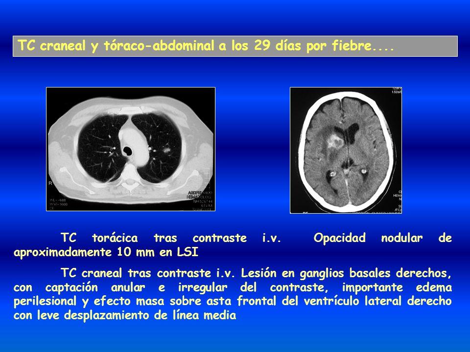 TC craneal y tóraco-abdominal a los 29 días por fiebre....