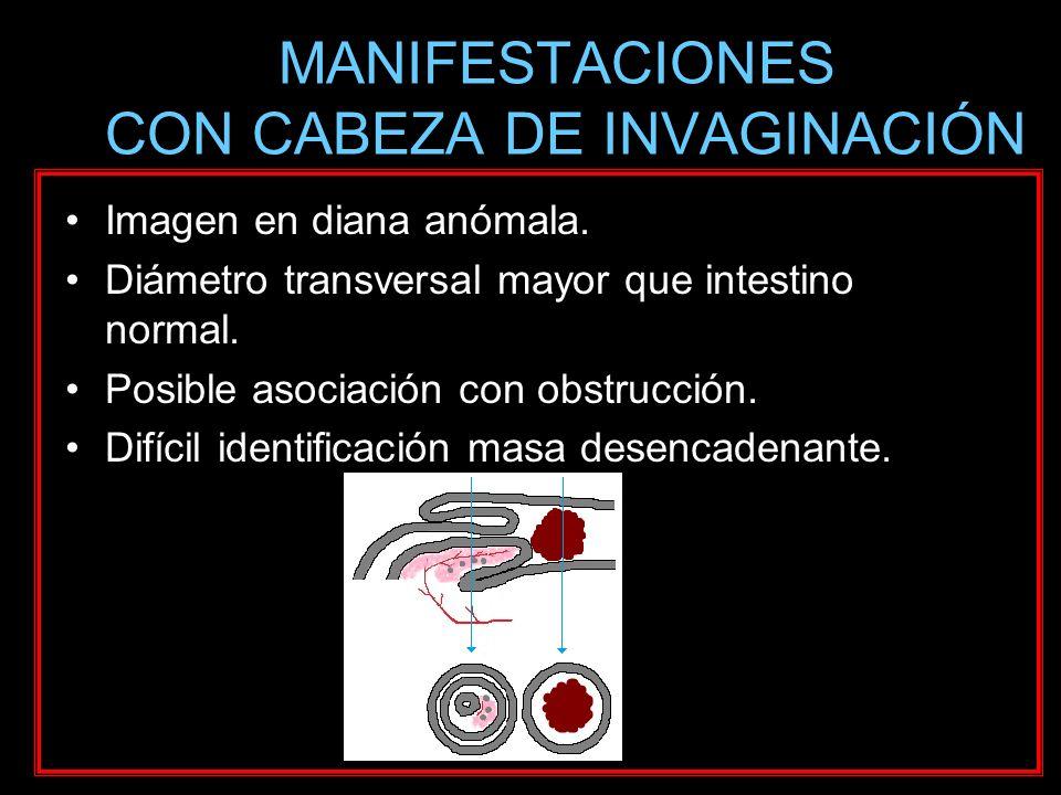 MANIFESTACIONES CON CABEZA DE INVAGINACIÓN