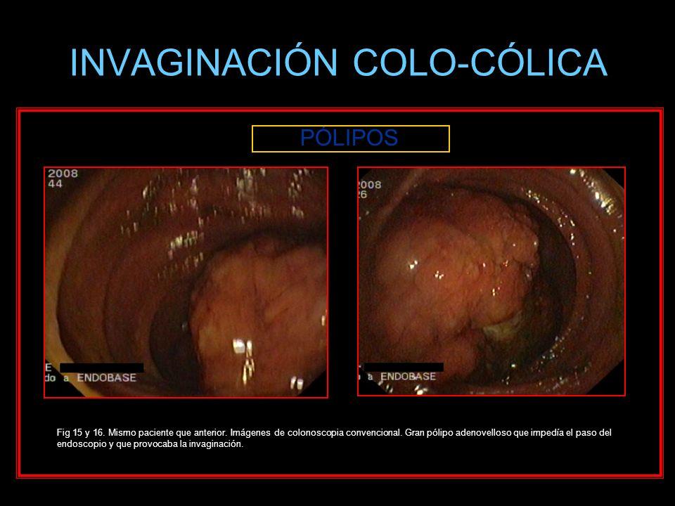 INVAGINACIÓN COLO-CÓLICA