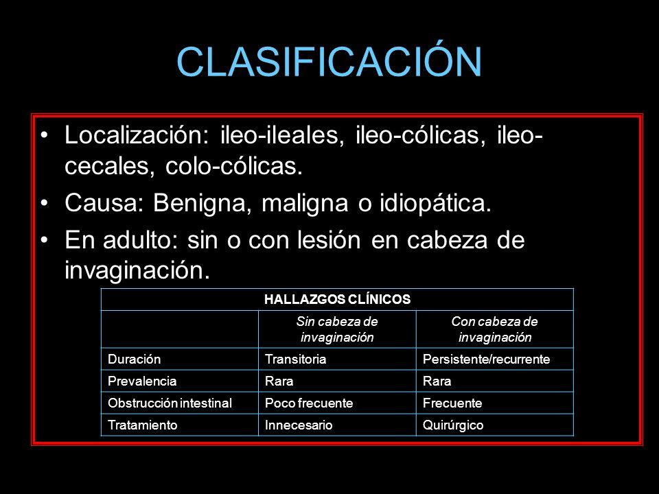 CLASIFICACIÓN Localización: ileo-ileales, ileo-cólicas, ileo-cecales, colo-cólicas. Causa: Benigna, maligna o idiopática.