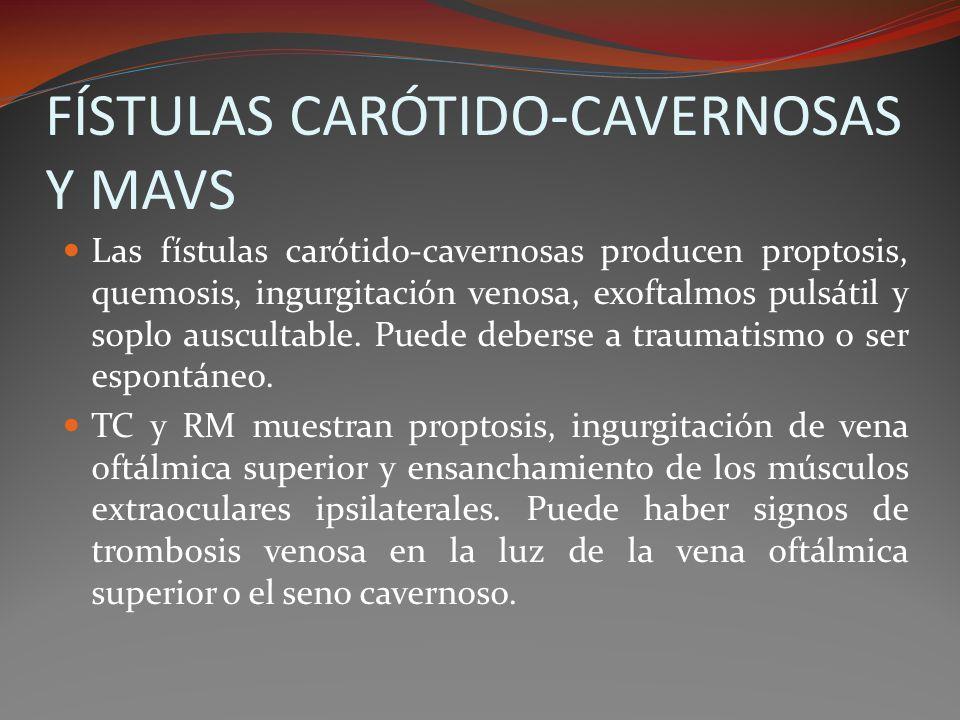 FÍSTULAS CARÓTIDO-CAVERNOSAS Y MAVS