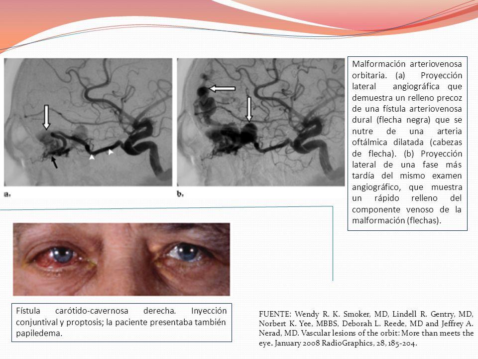 Malformación arteriovenosa orbitaria