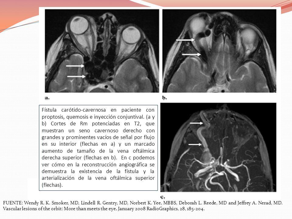 Fístula carótido-cavernosa en paciente con proptosis, quemosis e inyección conjuntival. (a y b) Cortes de Rm potenciadas en T2, que muestran un seno cavernoso derecho con grandes y prominentes vacíos de señal por flujo en su interior (flechas en a) y un marcado aumento de tamaño de la vena oftálmica derecha superior (flechas en b). En c podemos ver cómo en la reconstrucción angiográfica se demuestra la existencia de la fístula y la arterialización de la vena oftálmica superior (flechas).
