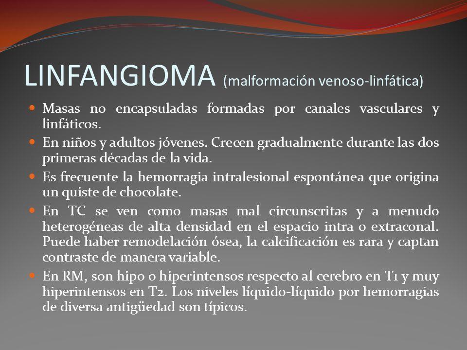 LINFANGIOMA (malformación venoso-linfática)