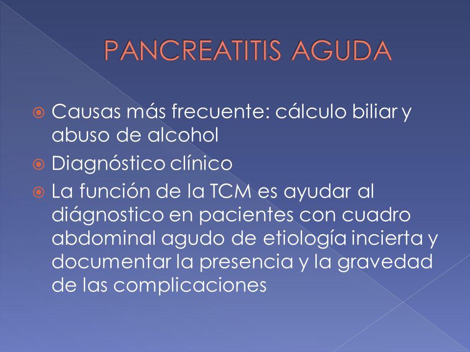 PANCREATITIS AGUDA Causas más frecuente: cálculo biliar y abuso de alcohol. Diagnóstico clínico.