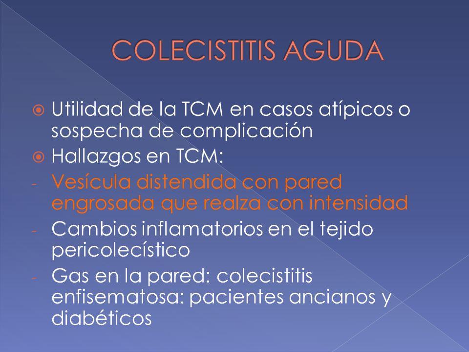 COLECISTITIS AGUDA Utilidad de la TCM en casos atípicos o sospecha de complicación. Hallazgos en TCM:
