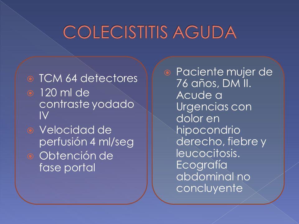 COLECISTITIS AGUDA TCM 64 detectores. 120 ml de contraste yodado IV. Velocidad de perfusión 4 ml/seg.